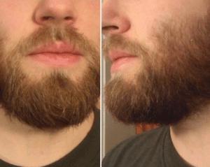 skæg Helsingør